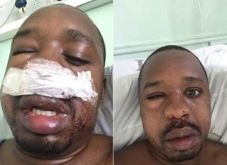 Bonface Mwangi beaten by the wife