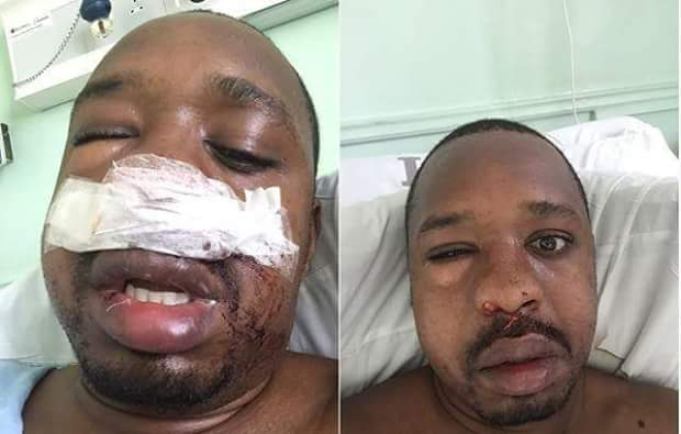 Bonface Mwangi beaten by the wife