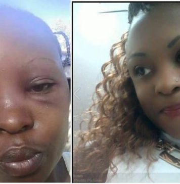 Otuoma wife's Rozyane Beaten badly by MP Husband